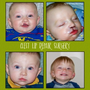 Cleft Lip Surgery ~ Ethan's Cleft Lip and Palate Journey
