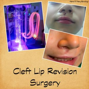Cleft lip Revision Surgery ~ Ethan's Cleft Lip / Palate Journey