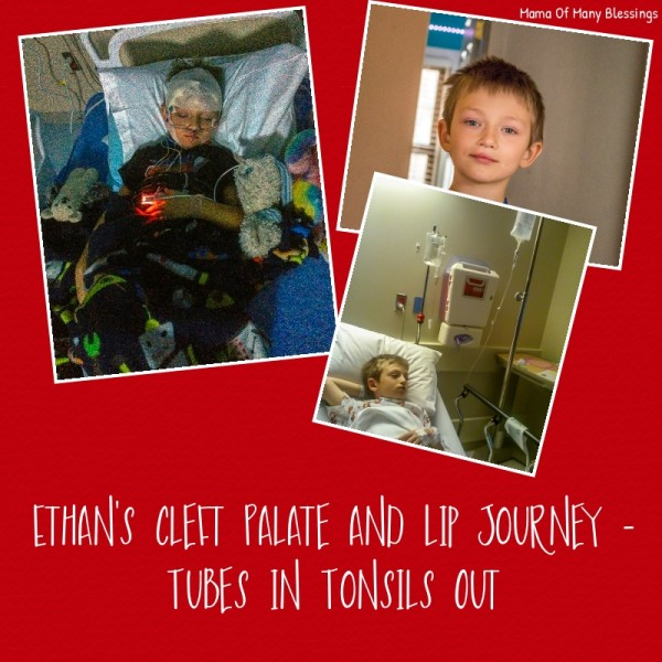 Tonsils Out and Tubes In ~ Ethan's Cleft Palate & Lip Journey