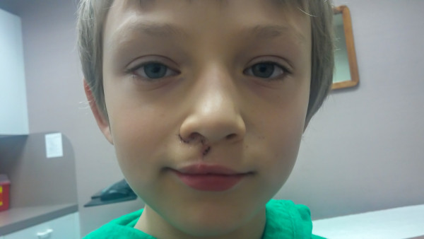 Cleft-Lip-Revision-Surgery-11