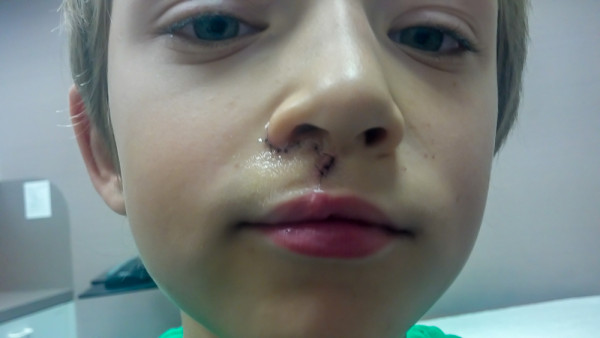 Cleft-Lip-Revision-Surgery-13