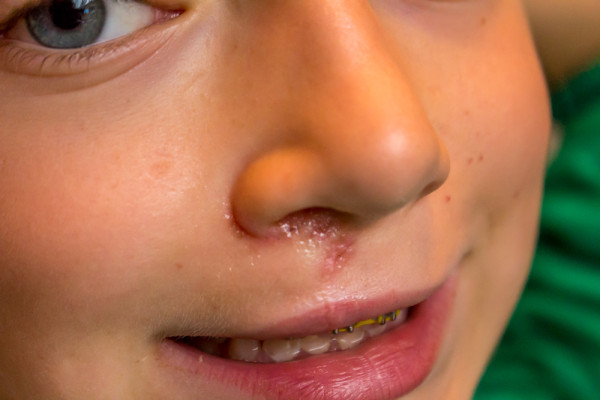Cleft-Lip-Revision-Surgery-14